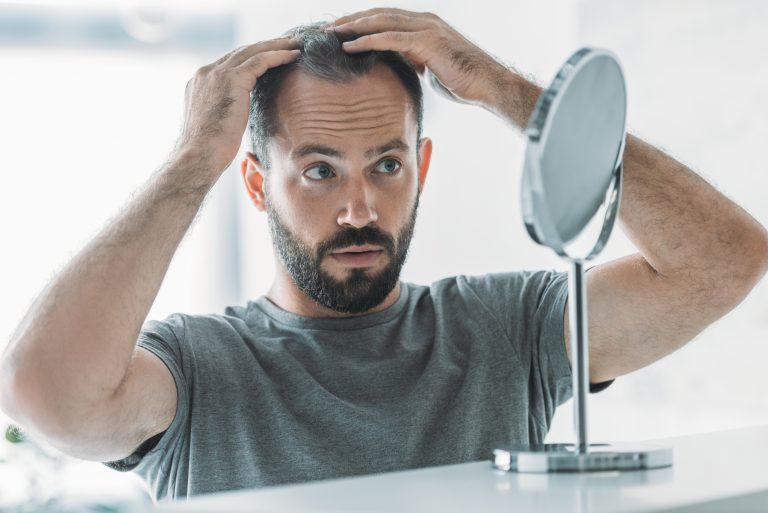 Mies huolestuu parranlähdöstä